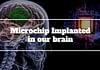 microchip in brain